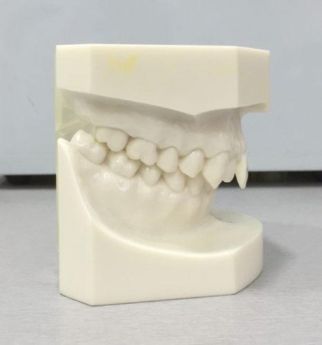 Class II teeth