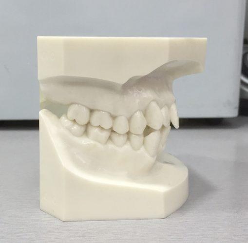 Class I teeth