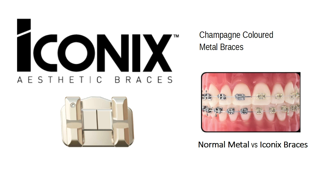 THE NEW CERAMIC DENTAL BRACES